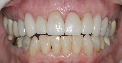 Dental Work Examples — Porcelain Veneers After in Broadway, VA