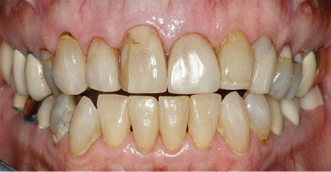 Porcelain Veneers — Porcelain Veneers Before in Broadway, VA