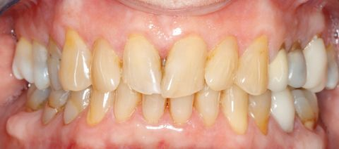 Close-up of a patient's smile before getting porcelain veneers